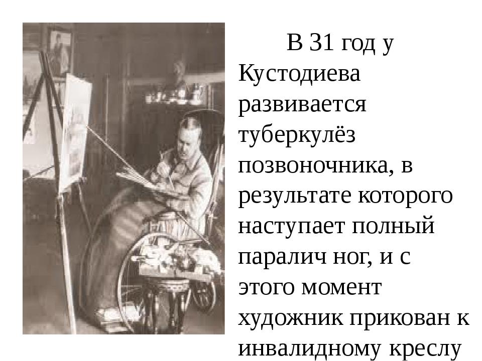 В 31 год у Кустодиева развивается туберкулёз позвоночника, в результате кот...