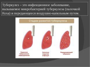 Туберкулез – это инфекционное заболевание, вызываемое микробактерией туберкул