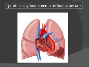 тромбоз глубоких вен и эмболия легких