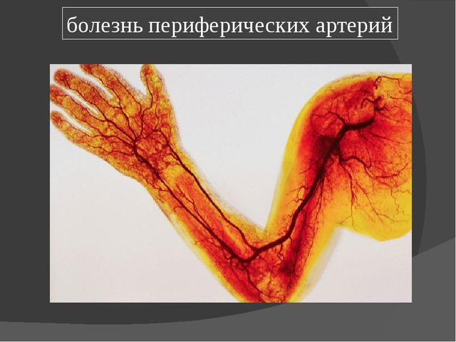 болезнь периферических артерий