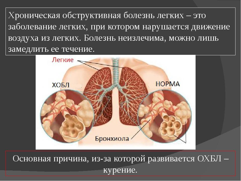 Хроническая обструктивная болезнь легких – это заболевание легких, при которо...