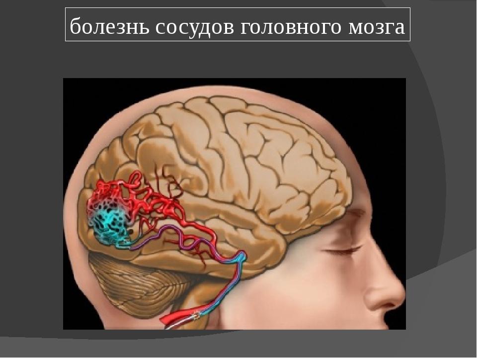 болезнь сосудов головного мозга