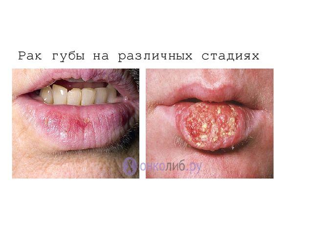 Рак губы на различных стадиях