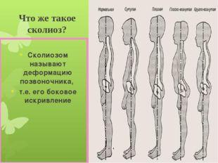 Что же такое сколиоз? Сколиозом называют деформацию позвоночника, т.е. его бо