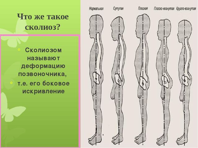 Что же такое сколиоз? Сколиозом называют деформацию позвоночника, т.е. его бо...