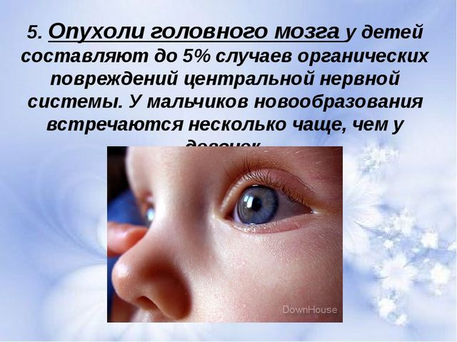 5. Опухоли головного мозга у детей составляют до 5% случаев органических повр...