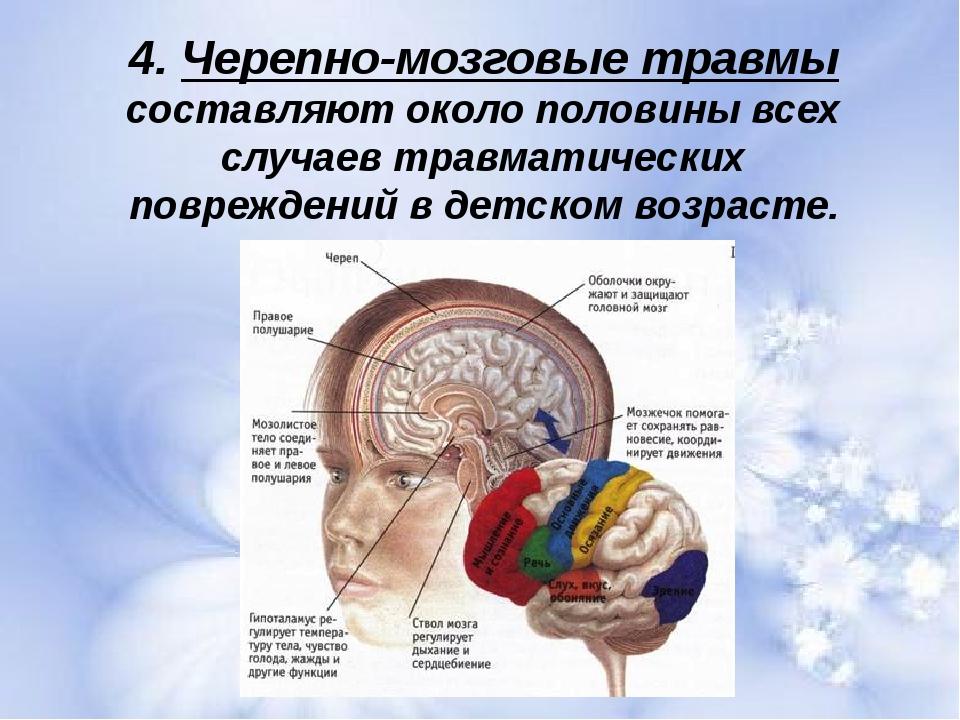 4. Черепно-мозговые травмы составляют около половины всех случаев травматичес...