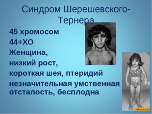Синдром Шерешевского-Тернера 45 хромосом 44+ХО Женщина, низкий рост, короткая