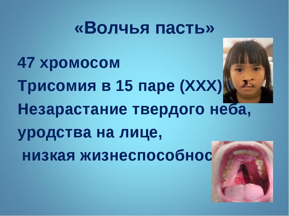 «Волчья пасть» 47 хромосом Трисомия в 15 паре (ХХХ) Незарастание твердого неб...