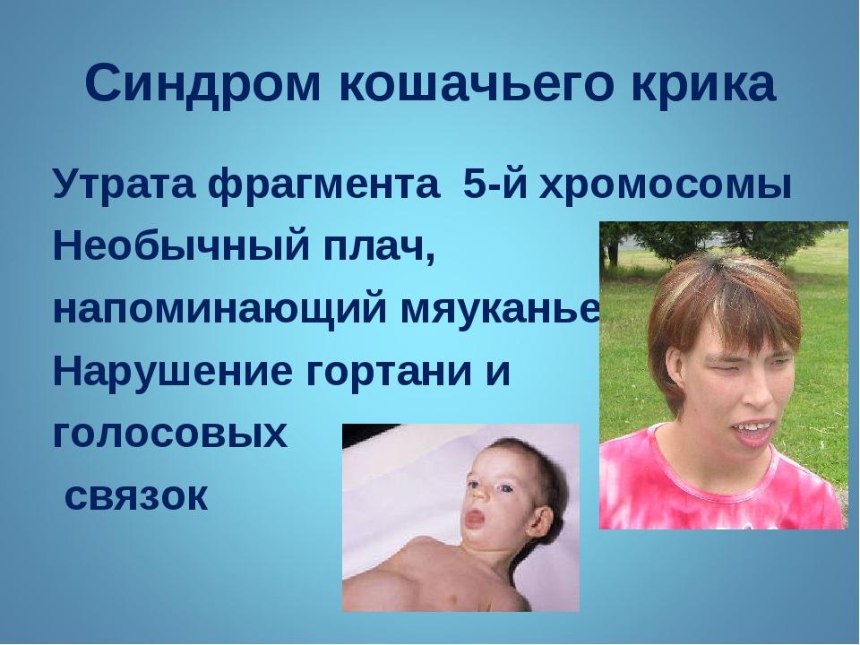 Синдром кошачьего крика Утрата фрагмента 5-й хромосомы Необычный плач, напоми...