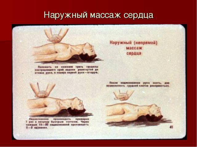 Наружный массаж сердца