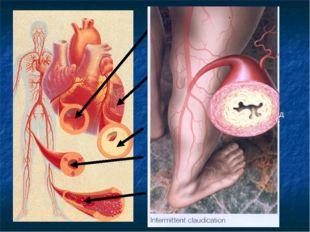 A. Никотин вызывает сужение кровеносных сосудов B. Никотин ведет к избыточным