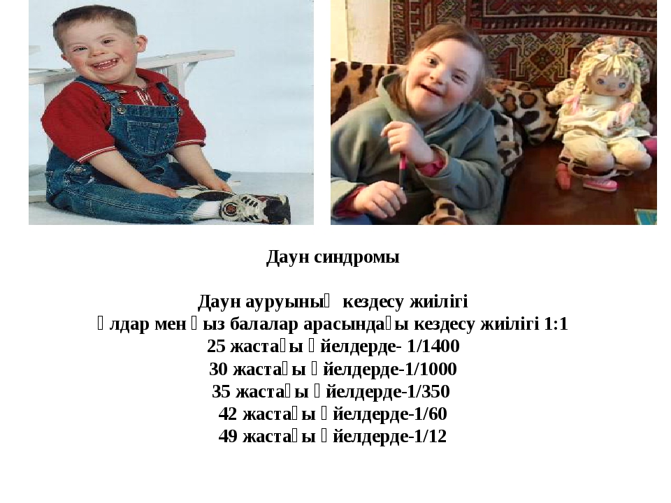 Даун синдромы Даун ауруының кездесу жиілігі Ұлдар мен қыз балалар арасындағы...