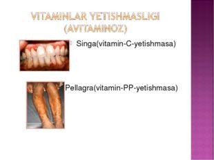 Singa(vitamin-C-yetishmasa) Pellagra(vitamin-PP-yetishmasa)