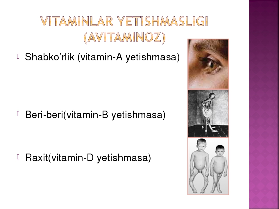 Shabko'rlik (vitamin-A yetishmasa) Beri-beri(vitamin-B yetishmasa) Raxit(vita...
