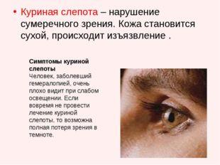 Куриная слепота – нарушение сумеречного зрения. Кожа становится сухой, происх