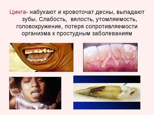 Цинга- набухают и кровоточат десны, выпадают зубы. Слабость, вялость, утомля...