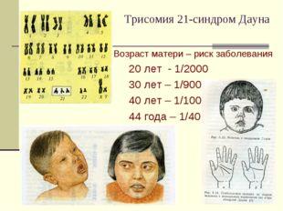 Трисомия 21-синдром Дауна Возраст матери – риск заболевания 20 лет - 1/2000 3