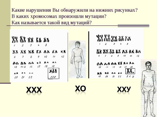 Какие нарушения Вы обнаружили на нижних рисунках? В каких хромосомах произош...