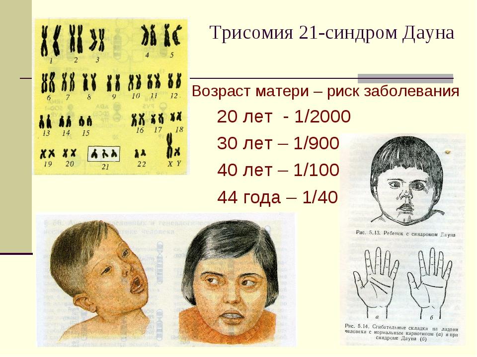 Трисомия 21-синдром Дауна Возраст матери – риск заболевания 20 лет - 1/2000 3...