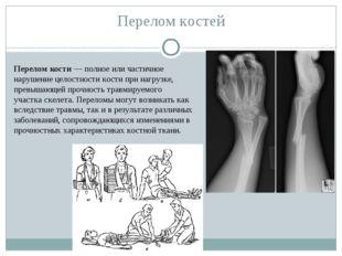 Перелом костей Перелом кости— полное или частичное нарушение целостностикос