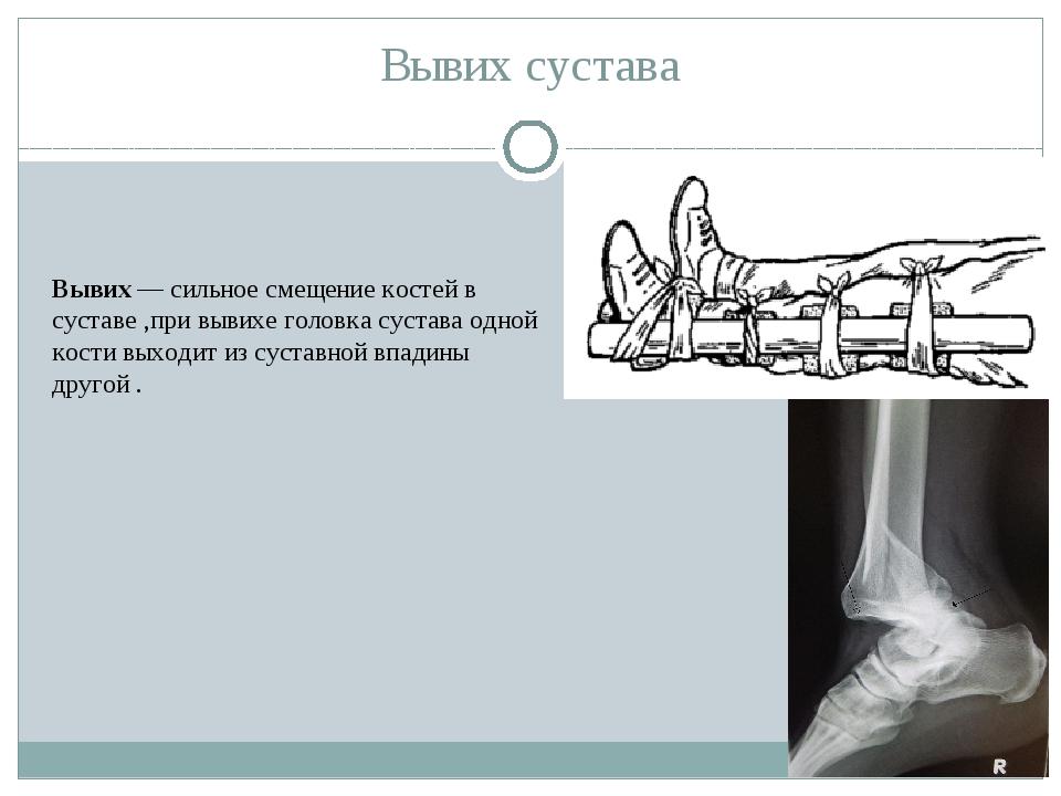 Вывих сустава Вывих— сильное смещение костей в суставе ,при вывихе головка с...