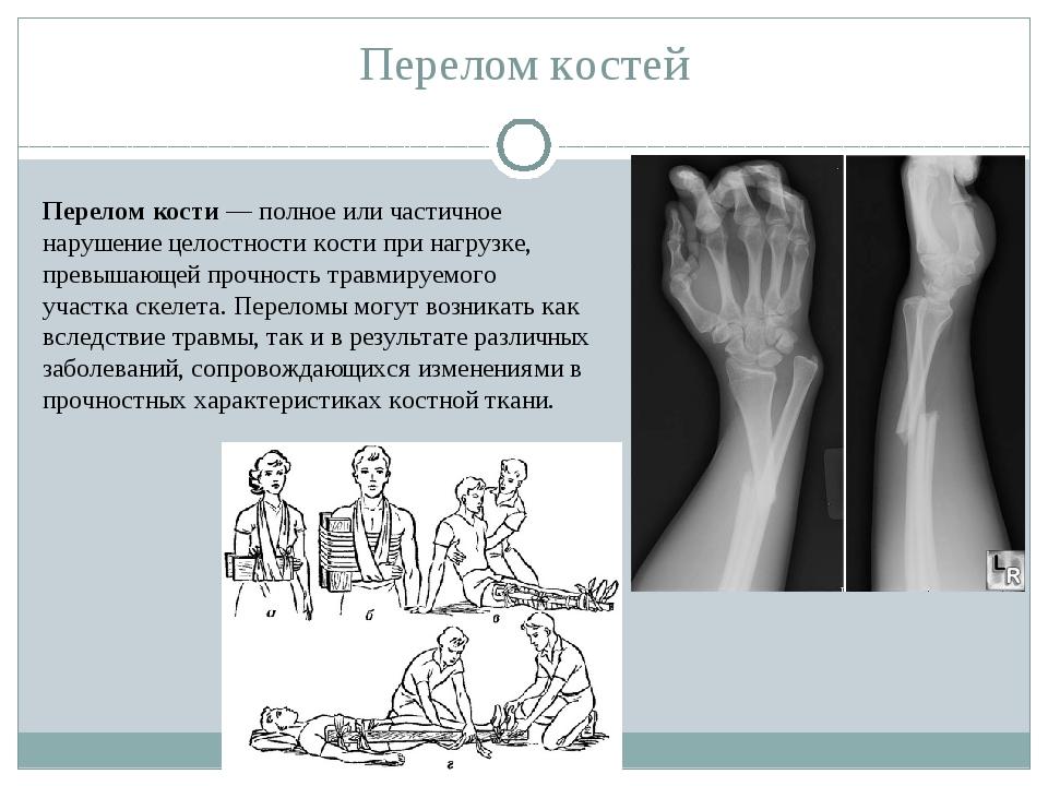 Перелом костей Перелом кости— полное или частичное нарушение целостностикос...