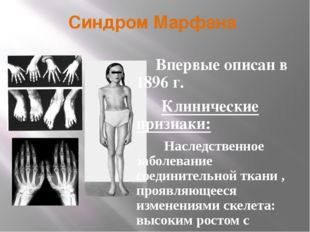 Синдром Марфана Впервые описан в 1896 г. Клинические признаки: Наследственное