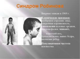 Синдром Робинова Впервые описан в 1969 г. Клинические признаки: необычное стр
