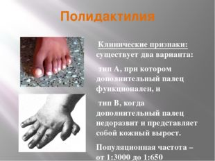 Полидактилия Клинические признаки: существует два варианта: тип А, при которо