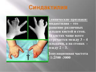 Синдактилия Клинические признаки: синдактилия – это сращение различных пальце