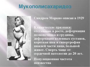 Мукополисахаридоз Синдром Моркио описан в 1929 г. Клинические признаки: отста
