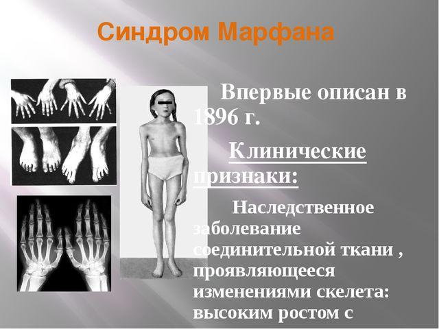 Синдром Марфана Впервые описан в 1896 г. Клинические признаки: Наследственное...