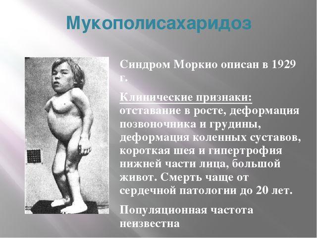 Мукополисахаридоз Синдром Моркио описан в 1929 г. Клинические признаки: отста...