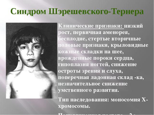 Синдром Шэрешевского-Тернера Клинические признаки: низкий рост, первичная аме...