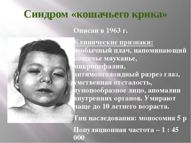 Синдром «кошачьего крика» Описан в 1963 г. Клинические признаки: необычный пл...