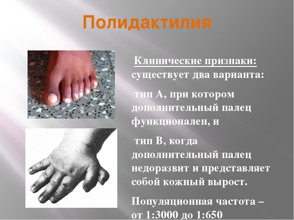 Полидактилия Клинические признаки: существует два варианта: тип А, при которо...