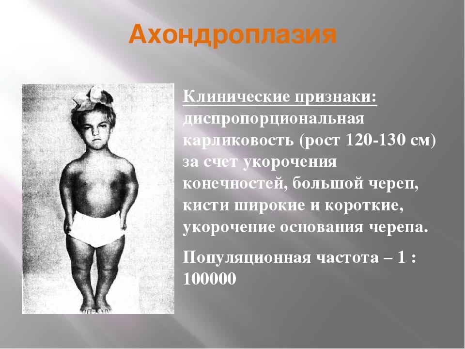 Ахондроплазия Клинические признаки: диспропорциональная карликовость (рост 12...