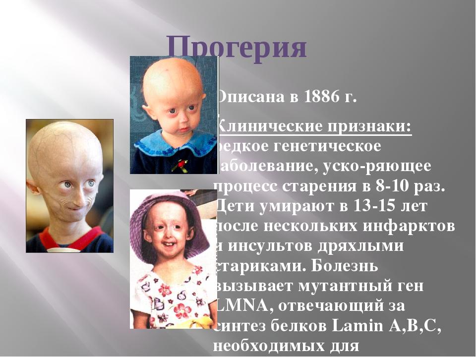 Прогерия Описана в 1886 г. Клинические признаки: редкое генетическое заболева...