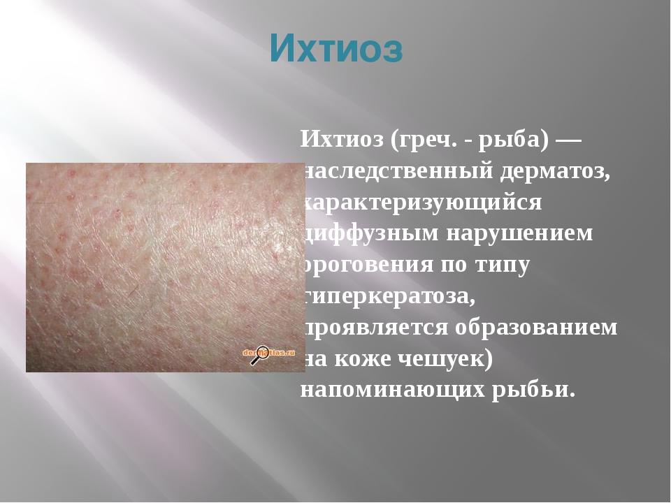 Ихтиоз Ихтиоз (греч. - рыба)— наследственный дерматоз, характеризующийся диф...