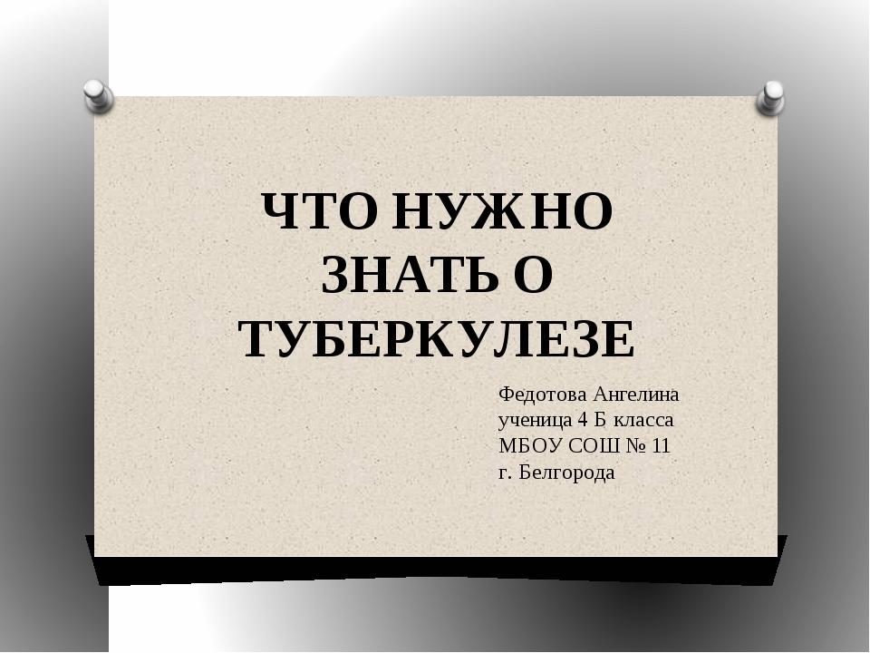 ЧТО НУЖНО ЗНАТЬ О ТУБЕРКУЛЕЗЕ Федотова Ангелина ученица 4 Б класса МБОУ СОШ №...