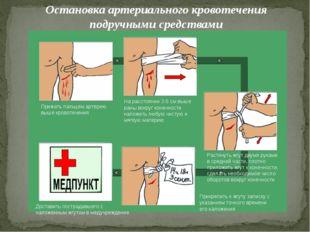 Остановка артериального кровотечения подручными средствами Прижать пальцем ар