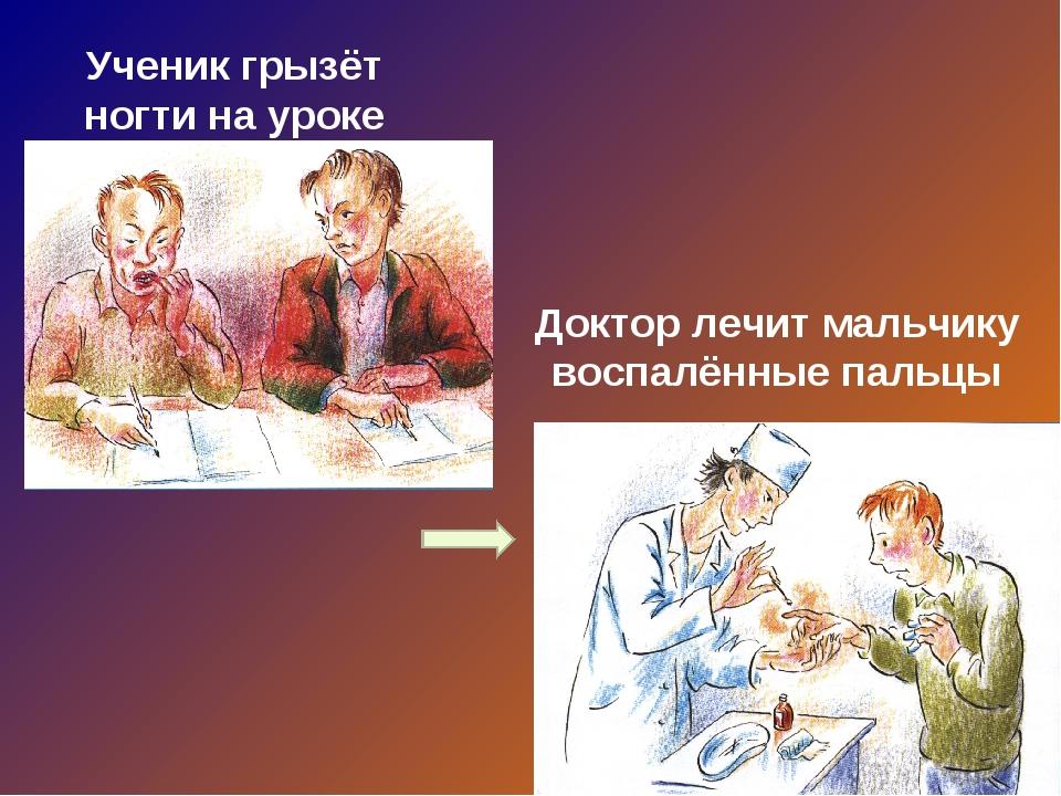Ученик грызёт ногти на уроке Доктор лечит мальчику воспалённые пальцы