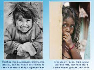 Улыбка этой малышки затмевает шрамы, оставленные бомбой на ее лице. Северный