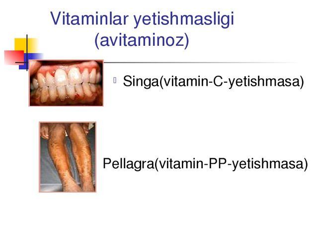 Vitaminlar yetishmasligi (avitaminoz) Singa(vitamin-C-yetishmasa) Pellagra(vi...
