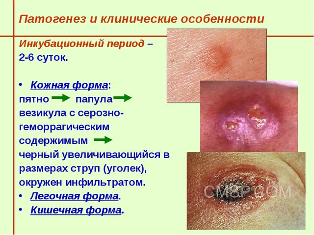 Патогенез и клинические особенности  Инкубационный период –  2-6 суток....