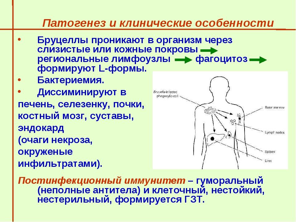 Патогенез и клинические особенности  Бруцеллы проникают в организм через сли...