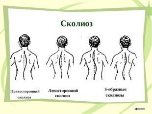 Сколиоз Правосторонний сколиоз Левосторонний сколиоз S-образные сколиозы