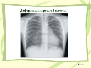 Деформации грудной клетки