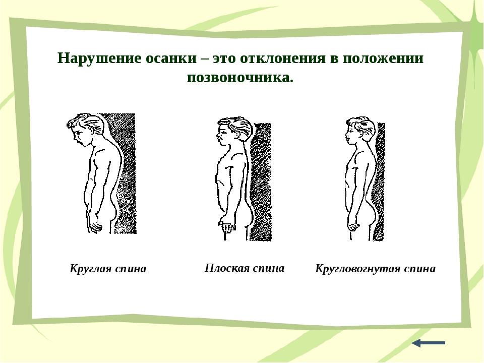 Нарушение осанки – это отклонения в положении позвоночника. Круглая спина Кру...